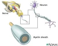 Nerves and MS