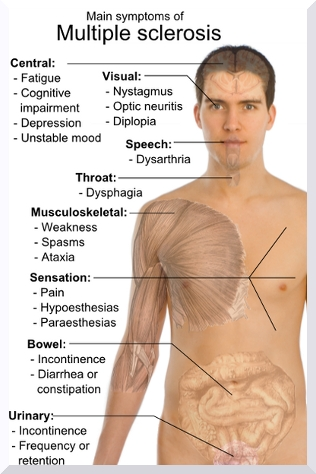 signs of multiple sclerosis, Skeleton