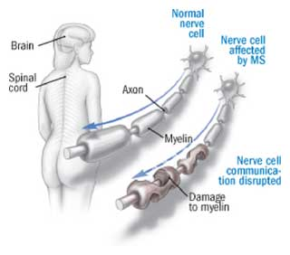 Demyelination of Nerves