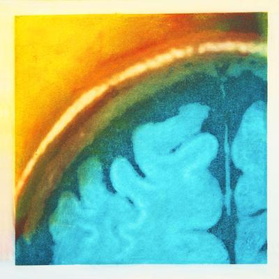 Emerging, Solarplate etching based on the MRI of the artist